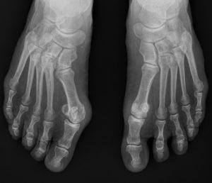 Radiographie d'un hallux valgus
