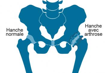 Schéma d'une hanche normale et d'une hanche avec arthtose